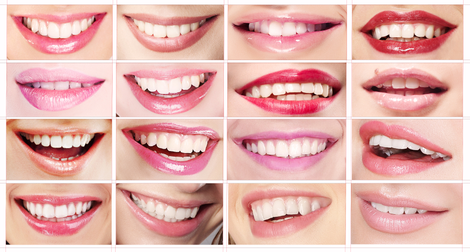 Choose Laser Teeth Whitening Summerlin Cosmetic Dentist