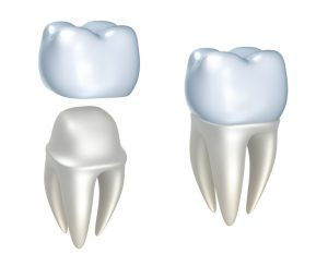 Choose same-day crowns in Summerlin for convenient dental care.