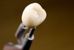 Solution to black line around a dental crown